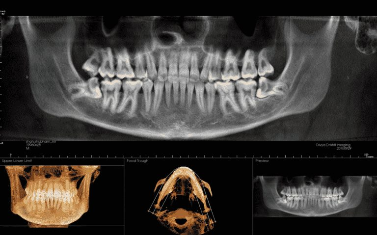 Impacted third molars