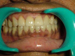 After Dental Fillings
