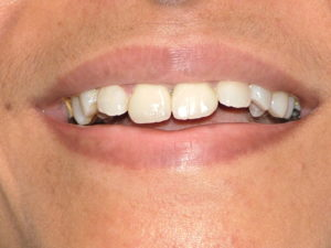 After Smile Correction