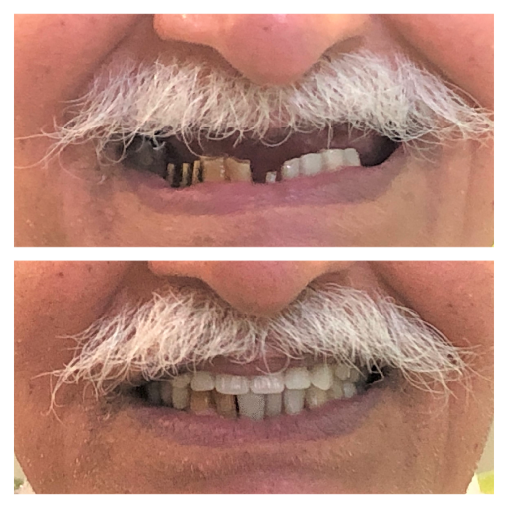 Before after full mouth reconstruction