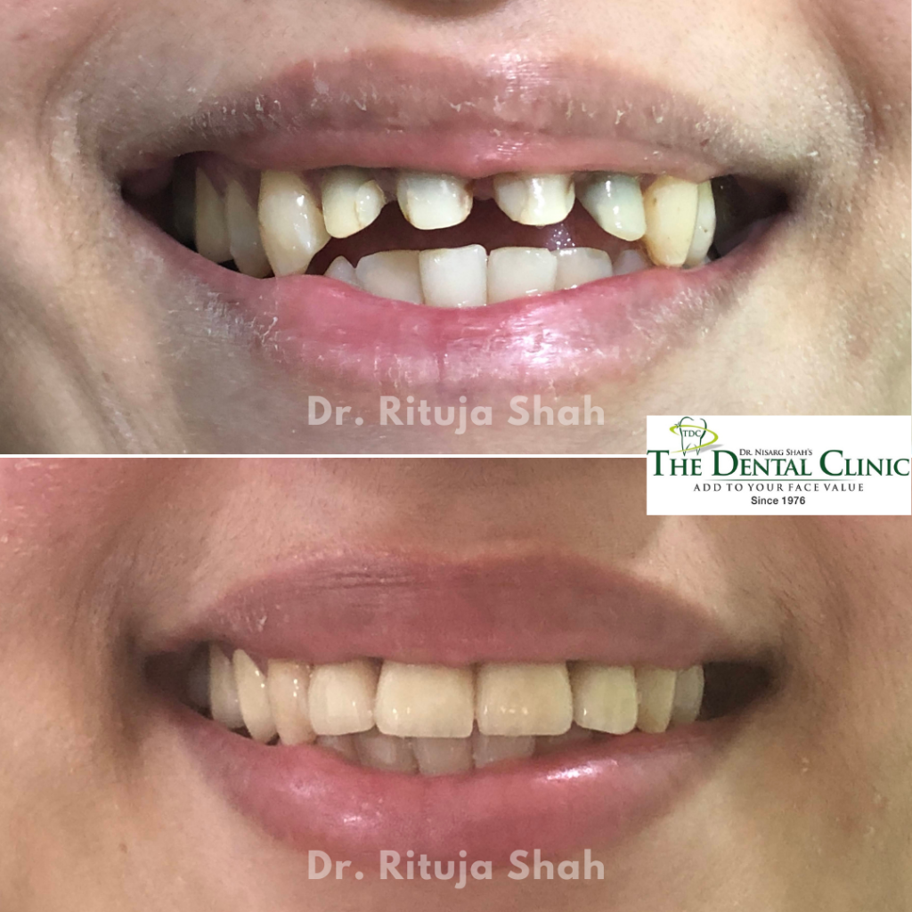 smile designing with zirconia crowns