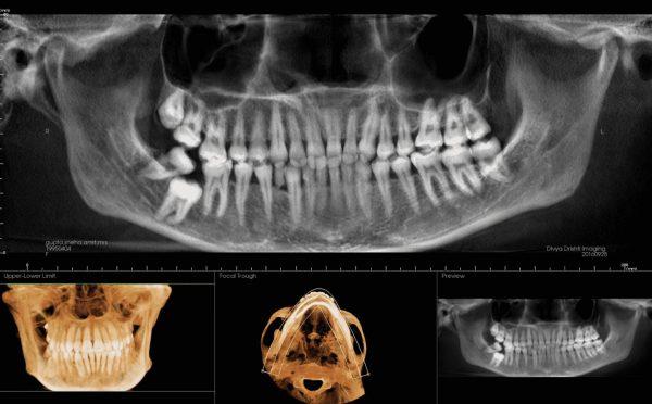 3rd molar shah23