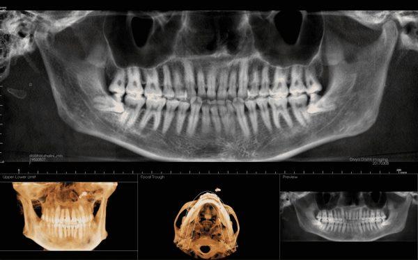 3rd molar shah5