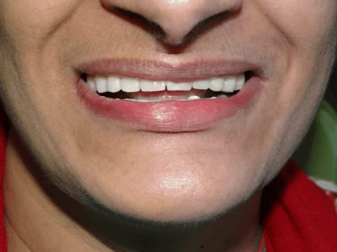 After implant supported Dentures