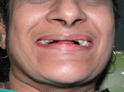 Before implant supported Dentures