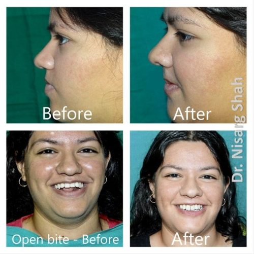Before/ After images - Orthognathic Surgery - Dr. Nisarg Shah