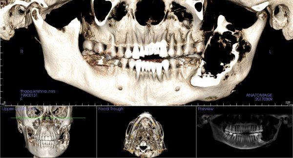 k8 opg in bone rendering