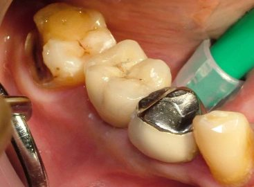 Single tooth Implant with Crown