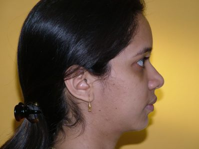 After Orthognathic Surgery