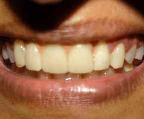 After Implant Crowns